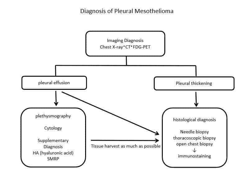diagnosis of pleural mesothelioma